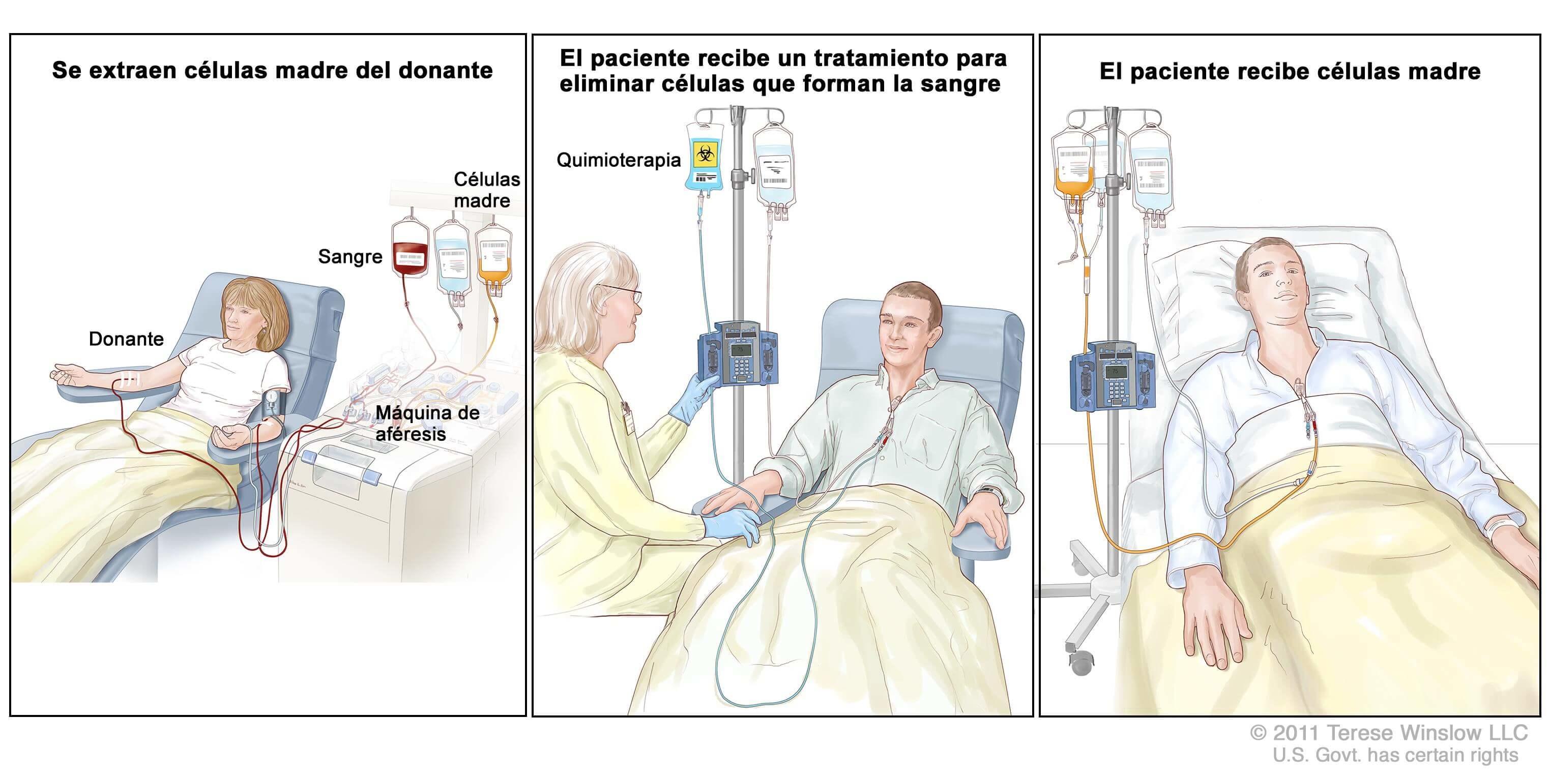 Puedo donar sangre con cáncer de próstata