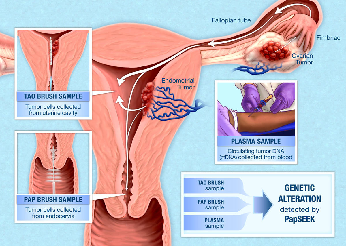 Papseek Test For Endometrial And Ovarian Cancer National Cancer Institute