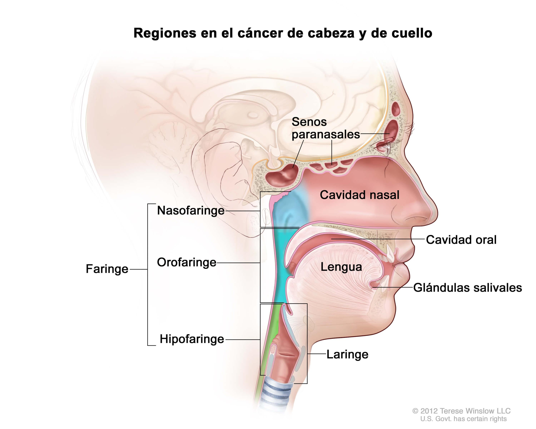 Inflamacion en el lado derecho del cuello