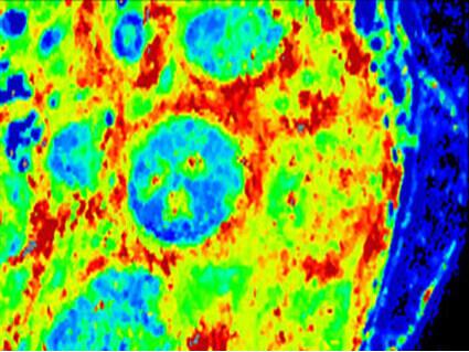 Stimulating Immune System Shrinks Some Lymphomas - National