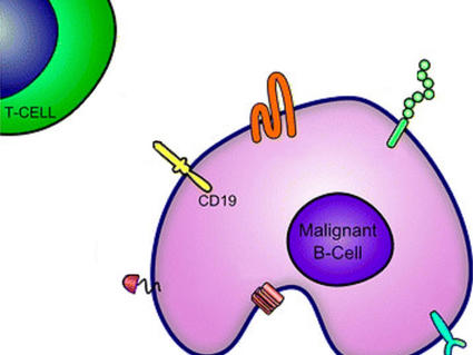 CAR T Cells: Engineering Immune Cells to Treat Cancer