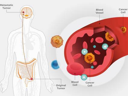 Fda Approves Encorafenib For Colorectal Cancer National Cancer Institute