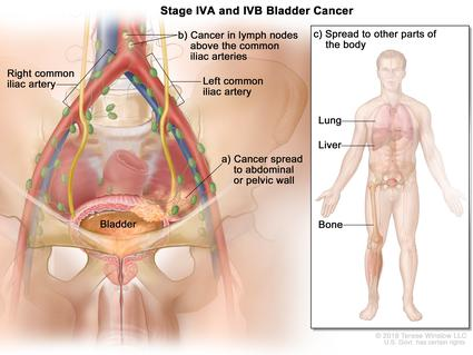 An illustration of blood cancer that has spread to other parts of the body.