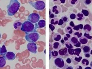 Pathology slides from a patient with AML with an FLT3 mutation that has relapsed and after remission..