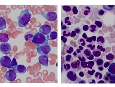 Pathology slides from a patient with acute myeloid leukemia that has relapsed (left) and after remission (right).