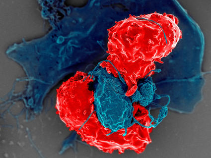 An image of T cells interacting with dendritic cells.
