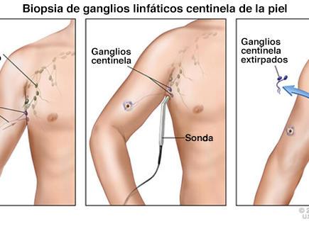 nódulos linfáticos espalda