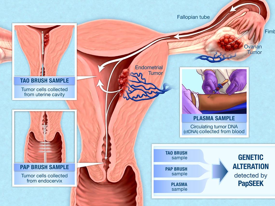 cancer endometrial papanicolau)