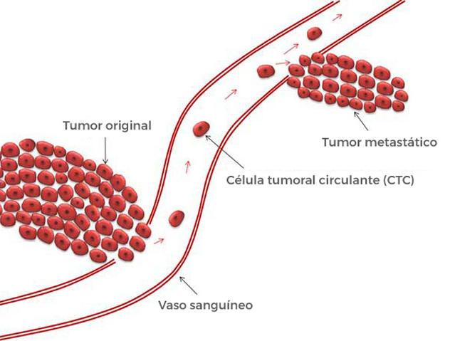 prueba de biopsia líquida para cáncer de próstata