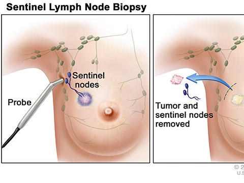 Lymph Node Removal In Early Stage Breast Cancer National Cancer Institute