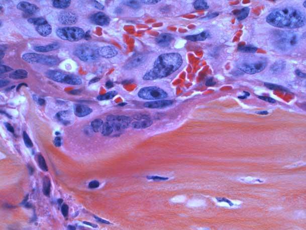 culturistas que murieron de cáncer de próstata