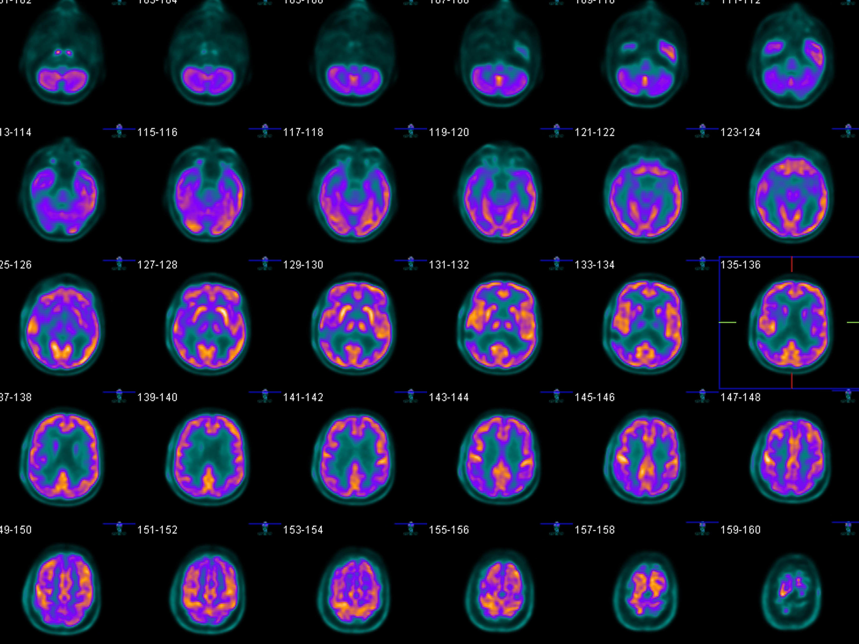 tomografía de próstata con contraste