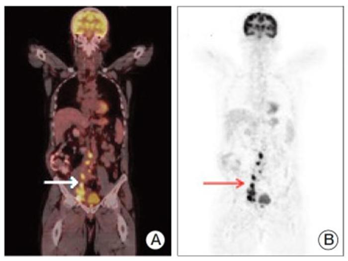 Metastatic cancer bladder