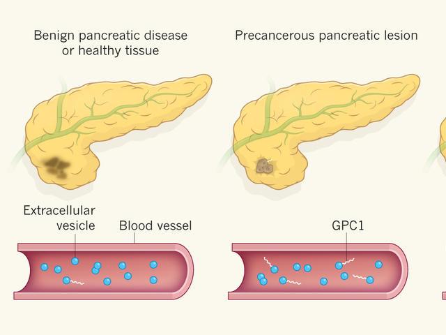 pancreatic cancer tumor marker)