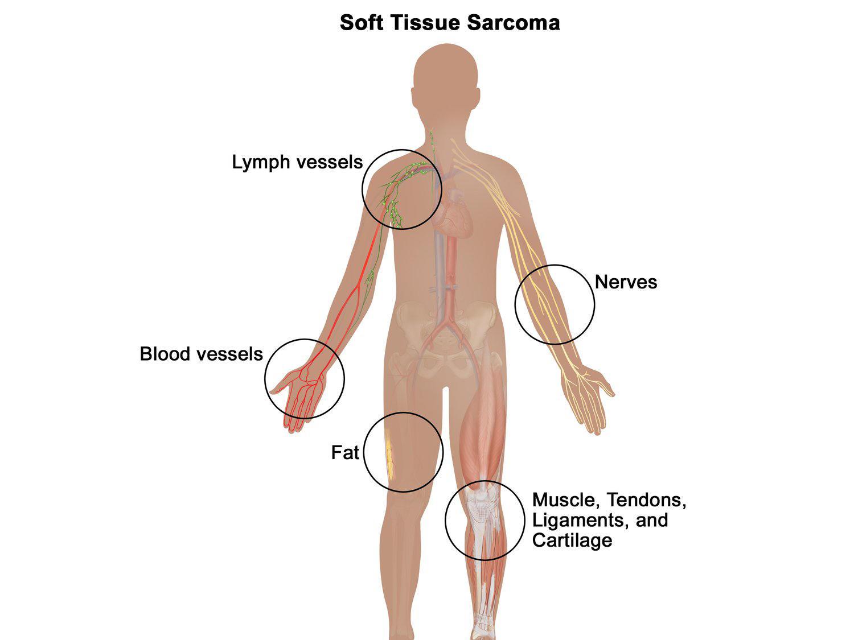 cancer en sarcomas)