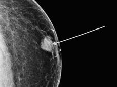 Image of a diagnostic mammogram showing a breast mass in a male patient.
