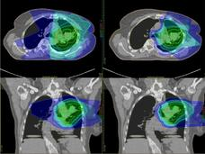 Scans of the chest after traditional radiation therapy and after proton therapy, which show how much surrounding tissue is affected by each type of therapy.
