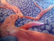 Angiogenesis medical animation still