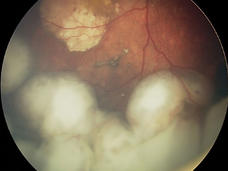 Fundoscopic exam revealing an intraocular retinoblastoma before treatment with intra-arterial chemotherapy