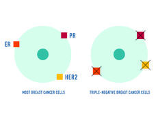 2 circles representing breast cancer cells, one triple-negative breast cancer and the other most breast cancer cells. The triple-negative breast cancer cells don't have estrogen receptors (ER), progesterone receptors (PR), or large amounts of the HER2 protein on their surface.