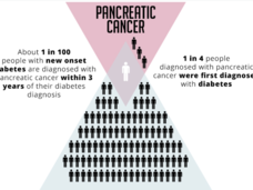 Infographic showing that 1 in 100 people with new-onset diabetes are diagnosed with pancreatic cancer within 3 years. And 1 in 4 people diagnosed with pancreatic cancer were first diagnosed with diabetes.